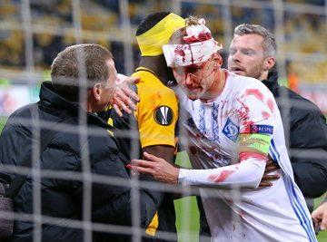 serious head injury football match